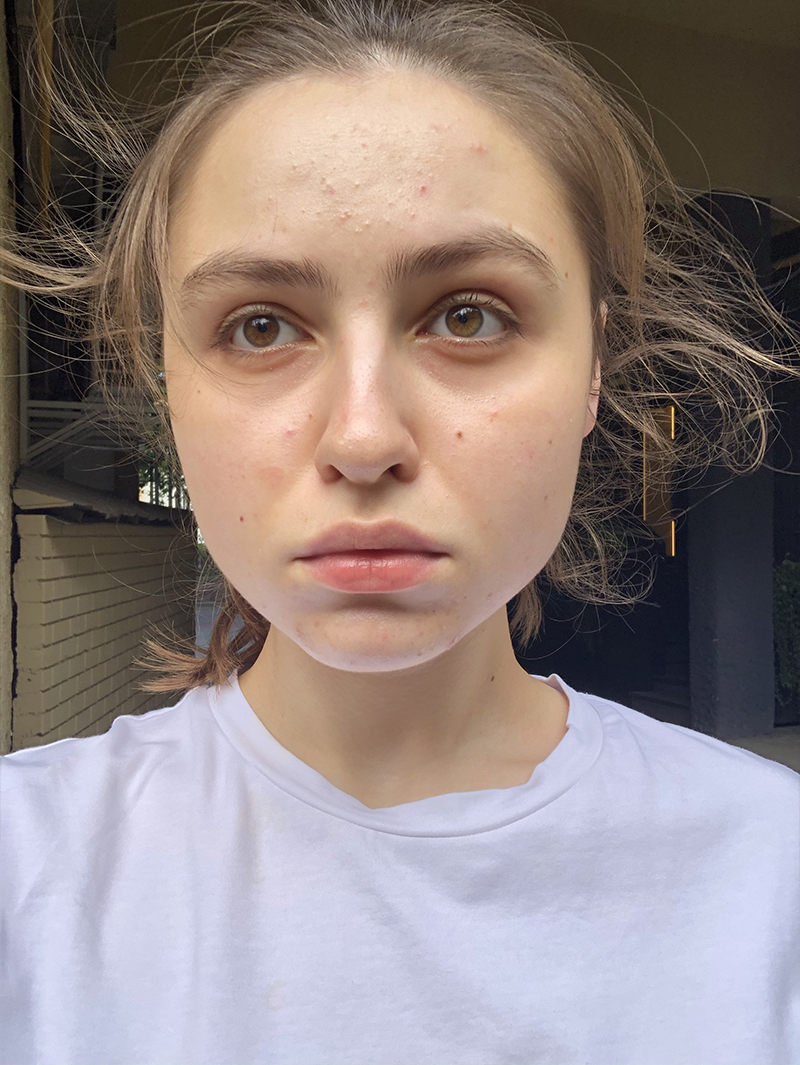 Ия Киселева после лечения акне