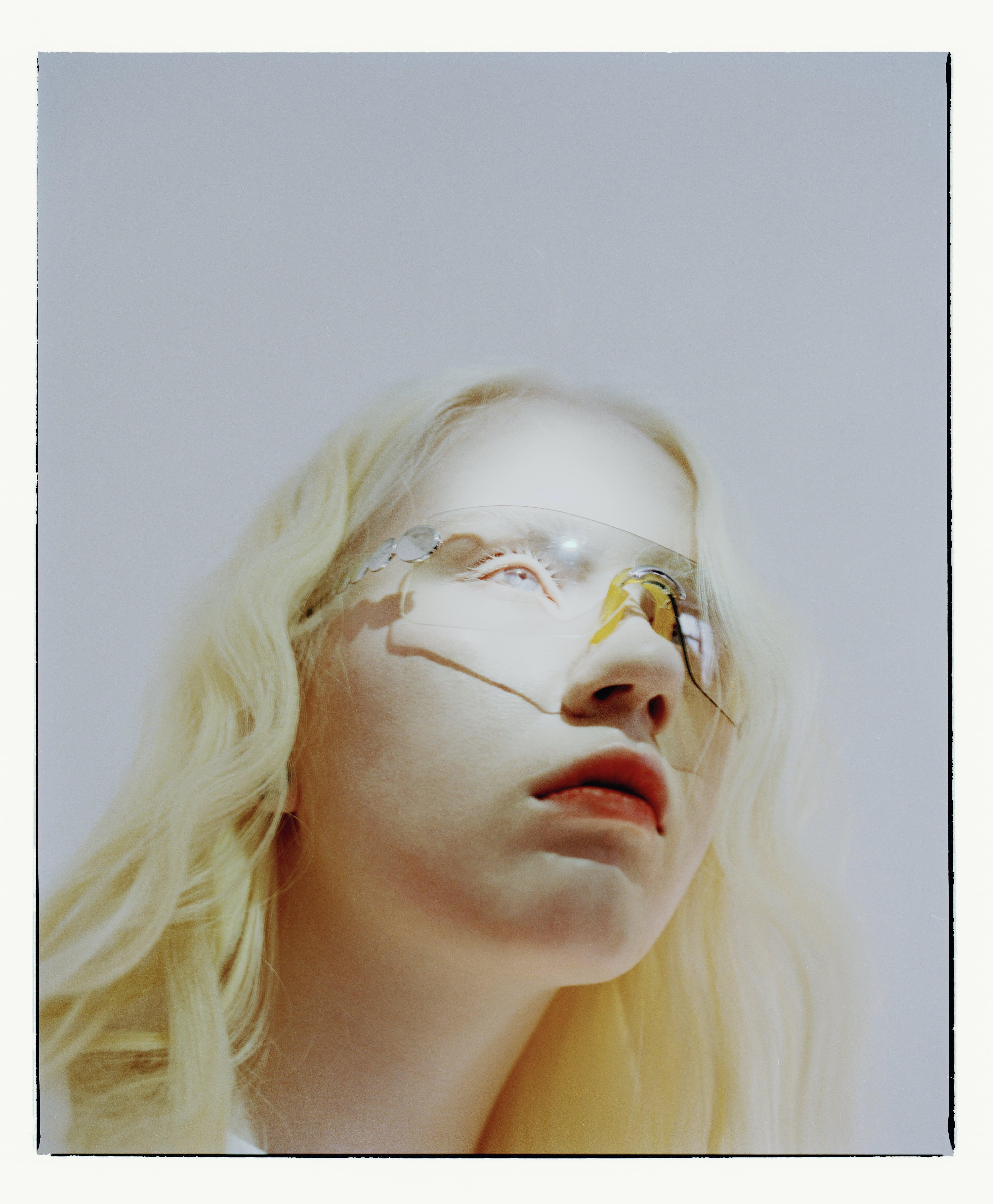 Интервью с альбиносом