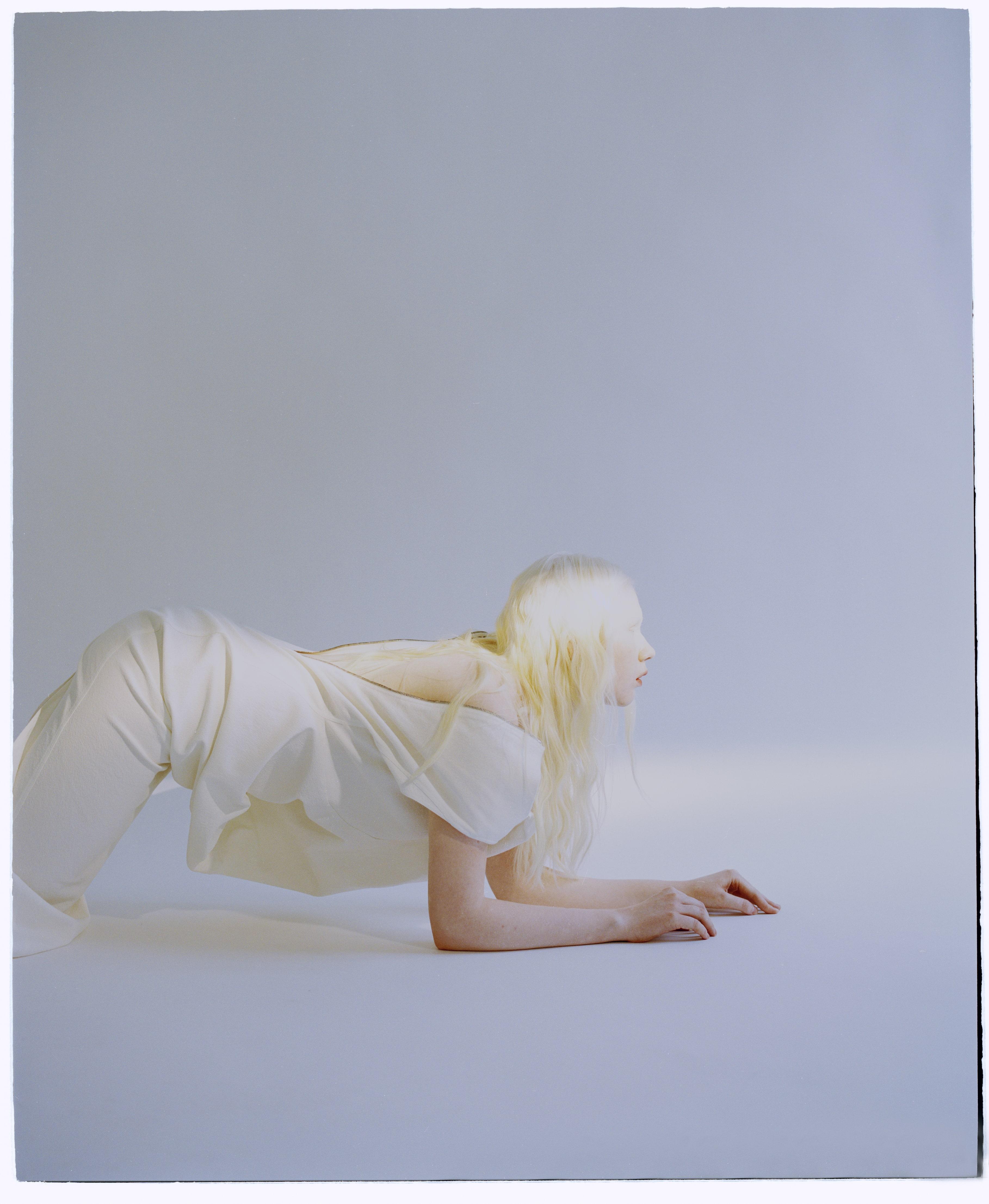 Интервью с девушкой альбиносом
