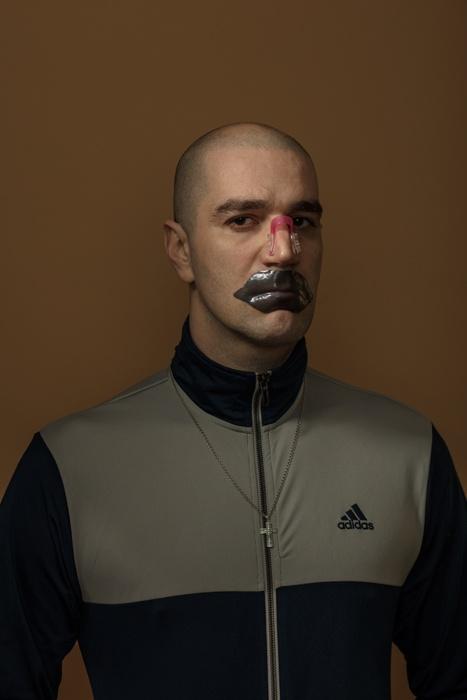 Автопортрет с корректором формы носа и патчами для губ