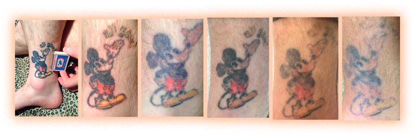 Удаление татуировки